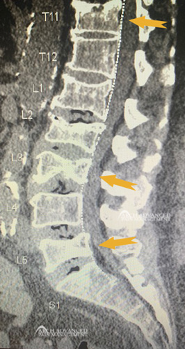 X-Ray of a Compression Fracture